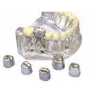 Directa TIN Crowns Directa Tin Temporary Crown Large Kit, Offers a non-traumatic temporary