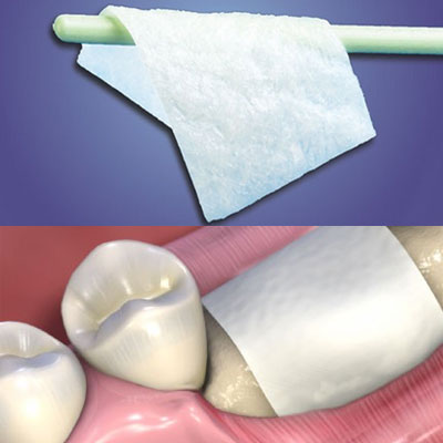 MatrixFlex regenerative collagen dental membrane