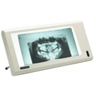 Luminator Slim-Line X-Ray Viewer. Ivory (Neutral) All Plastic Construction