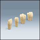 Frasaco Simulation Model Tooth for Restorative Procedures, Tooth #17