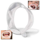 OptraGate 3D OptraGate Retractors - Assortment, White 80/Bx. Latex-free Lip