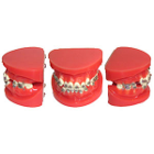 JSP Malocclusion Orthodontic Dental Model. Model shows irregularities