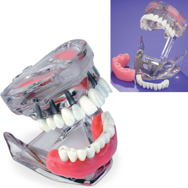 MDO DI Dual Arch Implant Model. Demonstrates both