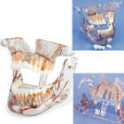 MDO DI Adult Full Pathology Model. The MDO Adult Full Pathology Model puts dental health