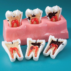 MDO DI Caries Progression Model. Hand-crafted with careful attention to detail, they improve