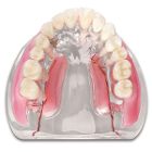 MDO DI Multi-Case Model. Helps patients visualize the full range of three-unit bridge attachments