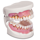 MDO DI Pathological Gingivitis Model. The MDO Pathological Gingivitis Model consists of an upper
