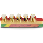 Practicon 5-Stage Periodontitis Model. Enlarged 1-1/2x life size. 6W x 2H